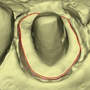 Prothèse dentaire empreintes numériques