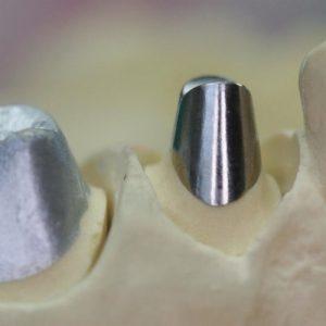 Prothèse scellès métalliques